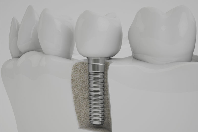 bone grafting model