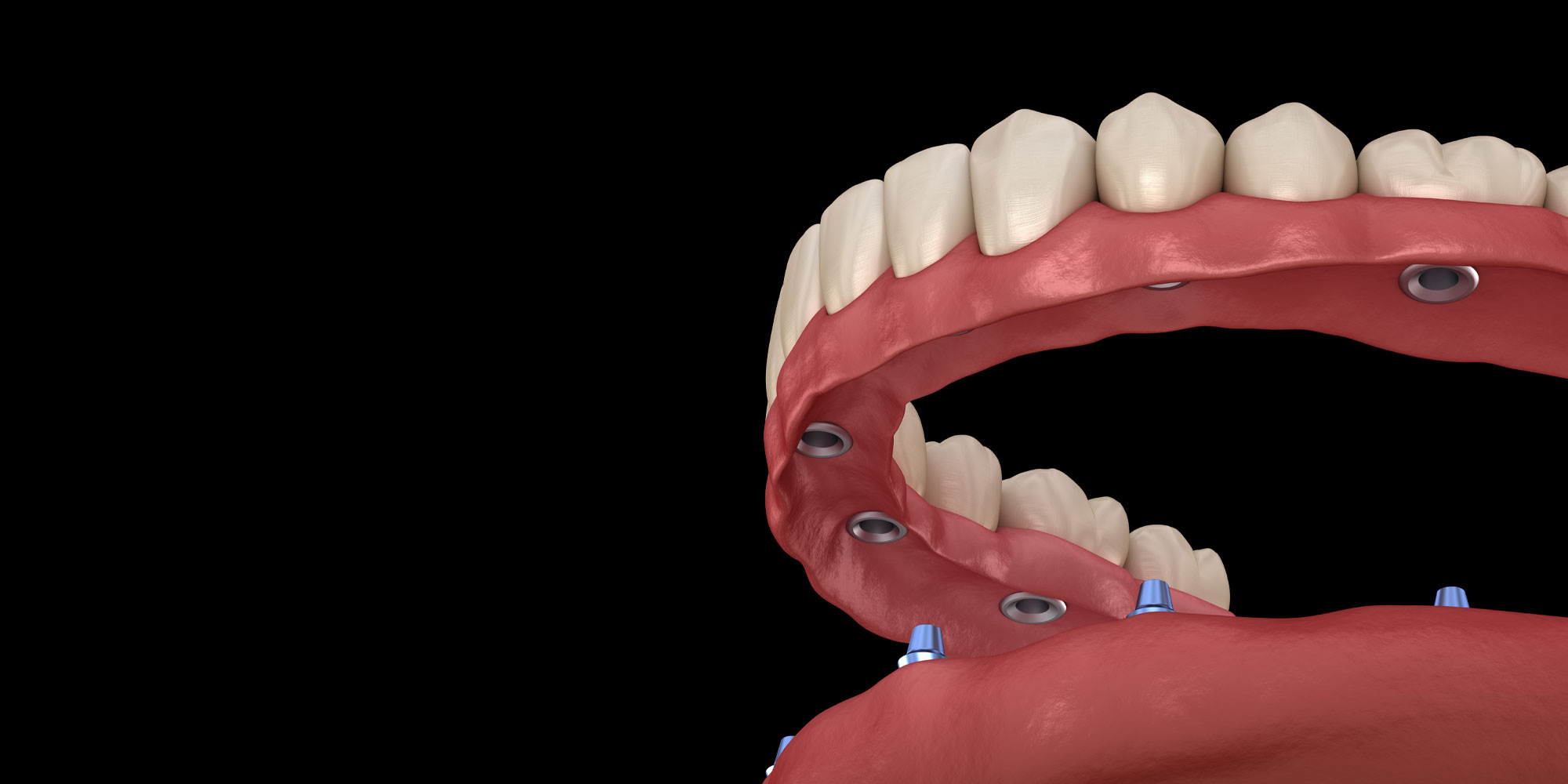 implant supported dentures model