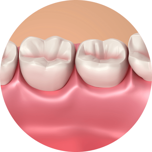Graphic of the soft tissue around your teeth