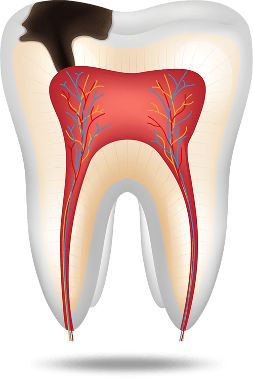 tooth cavity graphic