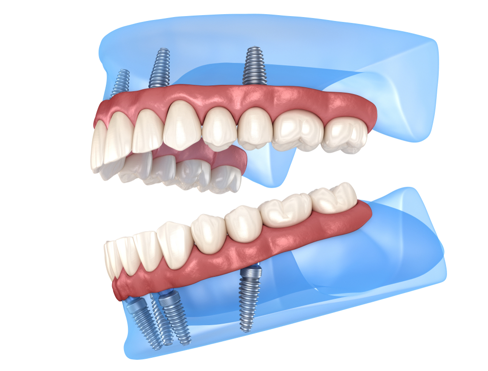 3D view of All on 4 Implants
