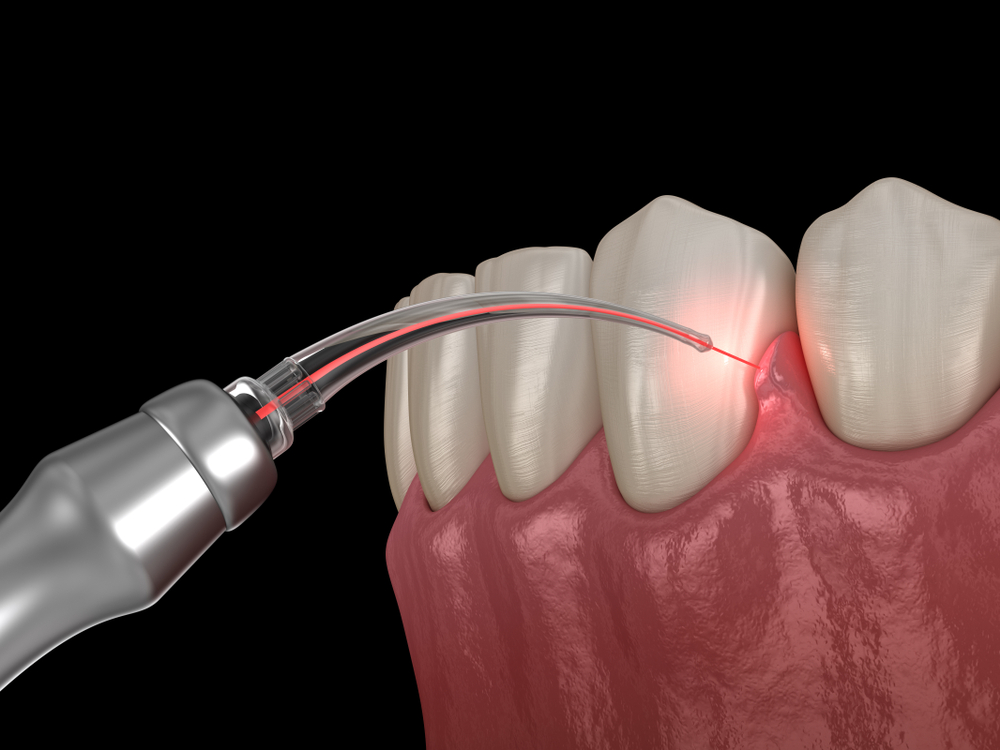 A laser dentistry treatment